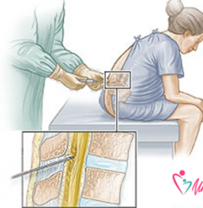 Anestesia epidurale. Ecco alcune risposte ai dubbi più frequenti